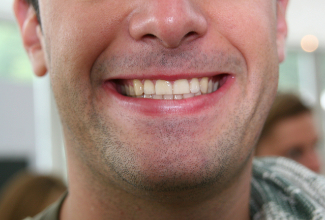 úsměv muže.jpg